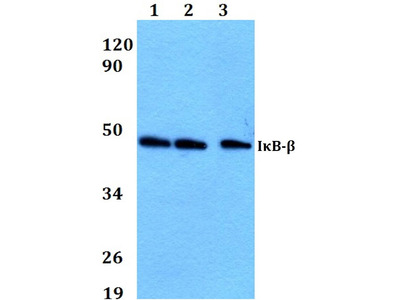 Rabbit Anti-IKB-beta Antibody