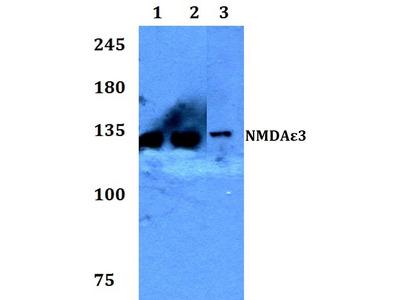 Rabbit Anti-NMDA epsilon3 Antibody