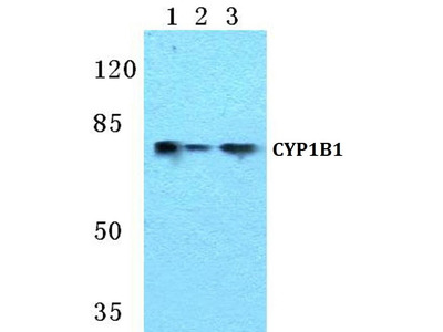 Rabbit Anti-CYP1B1 Antibody