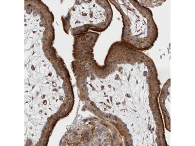 Anti-BNIP2 Antibody