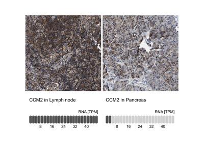 Anti-CCM2 Antibody