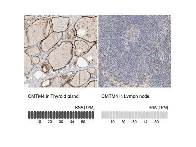 Anti-CMTM4 Antibody