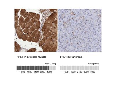 Anti-FHL1 Antibody