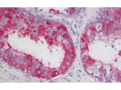 Rabbit Anti-LOXL2 Antibody