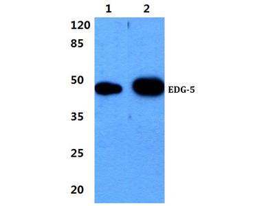 Rabbit Anti-EDG-5 Antibody