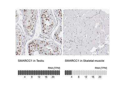 Anti-SMARCC1 Antibody