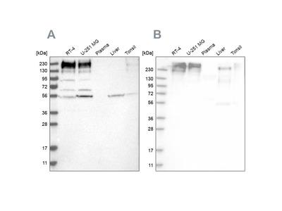Anti-SON Antibody