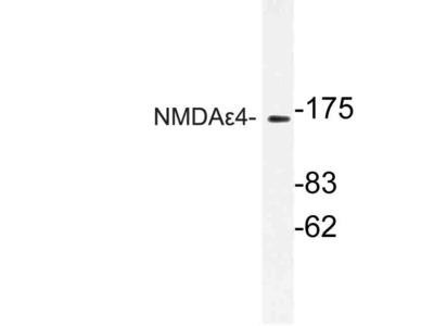 Rabbit Anti-NMDA epsilon4 Antibody