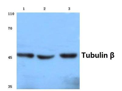 Rabbit Anti-Tubulin beta Antibody