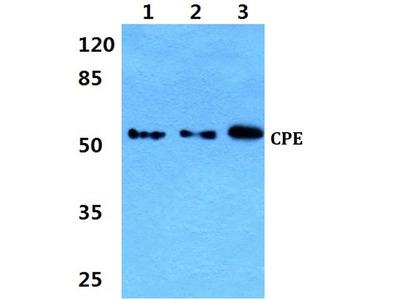 Rabbit Anti-CPE Antibody
