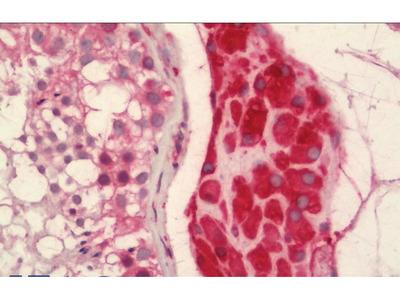 Rabbit Anti-ASPH Antibody