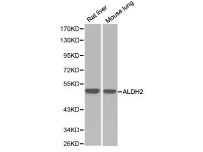 Rabbit Anti-ALDH2 Antibody