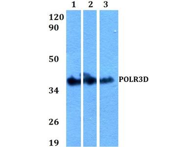 Rabbit Anti-POLR3D Antibody