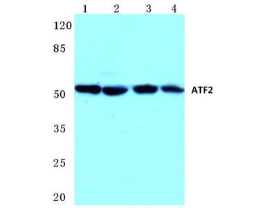 Rabbit Anti-ATF2 Antibody