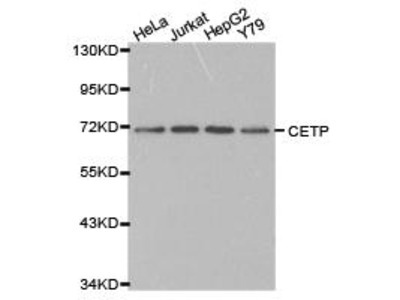 Rabbit Anti-CETP Antibody