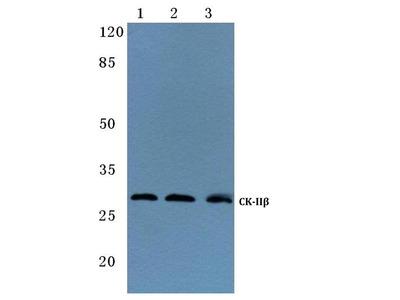 Rabbit Anti-Casein Kinase IIbeta, phosphorylated Antibody
