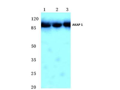 Rabbit Anti-AKAP 1 Antibody