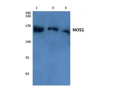 Rabbit Anti-NOS1 Antibody