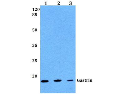 Rabbit Anti-Gastrin Antibody