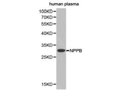 Rabbit Anti-NPPB Antibody