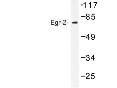 Rabbit Anti-Egr-1/2 Antibody