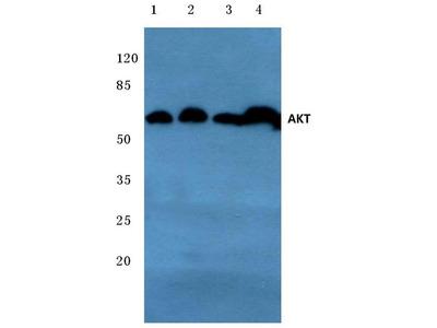 Rabbit Anti-AKT Antibody