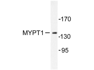 Rabbit Anti-MYPT1 Antibody