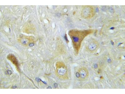 Rabbit Anti-APP/beta Antibody