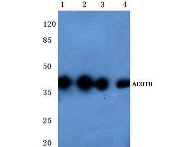 Rabbit Anti-ACOT8 Antibody