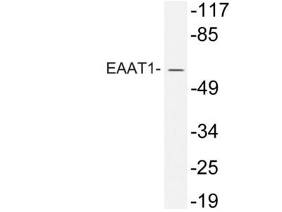 Rabbit Anti-EAAT1 Antibody