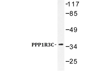 Rabbit Anti-PPP1R3C Antibody