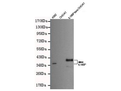 Mouse Anti-IL18BP Antibody