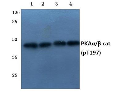 Rabbit Anti-PKA alpha/beta cat, phosphorylated Antibody