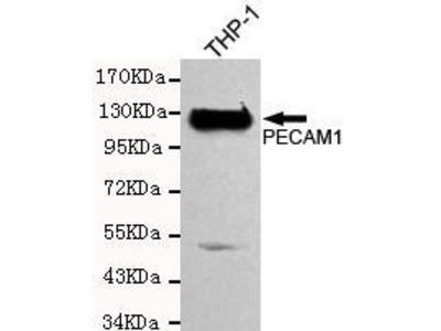 Mouse Anti-CD31 Antibody