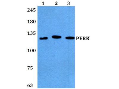 Rabbit Anti-PERK Antibody