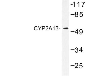Rabbit Anti-CYP2A13 Antibody
