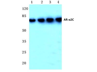 Rabbit Anti-AR-alpha2C Antibody