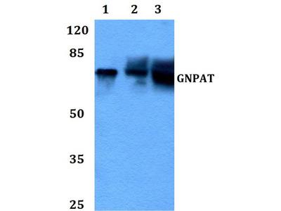 Rabbit Anti-GNPAT Antibody