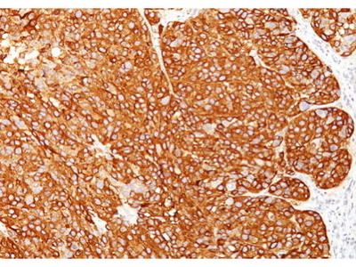 Mouse Anti-Melanoma Marker Antibody