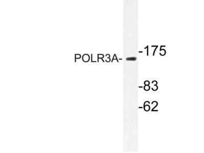 Rabbit Anti-POLR3A Antibody