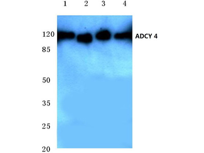 Rabbit Anti-ADCY 4 Antibody