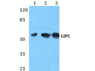 Rabbit Anti-LIPC Antibody