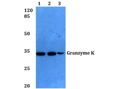 Rabbit Anti-Granzyme K Antibody