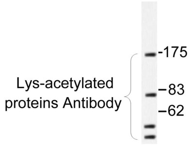 Rabbit Anti-CHRM3 Antibody