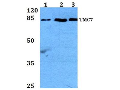 Rabbit Anti-TMC7 Antibody
