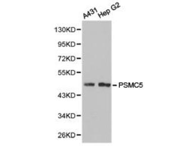 Rabbit Anti-PSMC5 Antibody