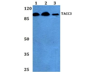 Rabbit Anti-TACC3 Antibody