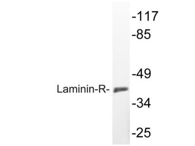 Rabbit Anti-Laminin-R Antibody