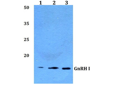Rabbit Anti-GnRH I Antibody