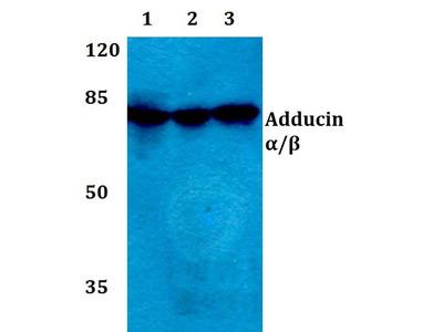 Rabbit Anti-Adducin alpha Antibody
